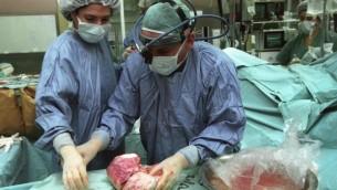 اطباء اثناء عملية زرع 2003 (فلاش 90)