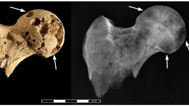 صورة لعلامات على عظام رجل دفن عام 1200 قبل الميلاد يعتقد الباحثون ان سببها مرض السرطان (photo credit: CC BY Binder et al/PLOS One)
