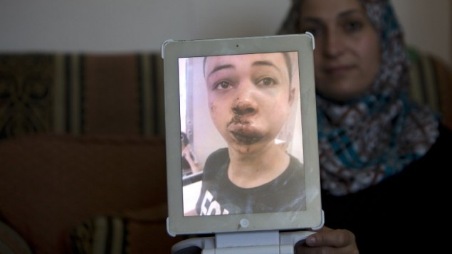 والدة طارق ابو خضير (15) ابن عم الفلسطيني المقتول محمد ابو خضير ترفع صورة لابنها وهو في المستشفى بعد ان ضرب على يد الشرطة الاسرائيلية بحسب التقارير 5 يوليو 2014  AFP/Ahmad Gharabli