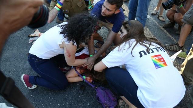 امرأة مصابة بعد هجوم الطعن في موكب الفخر في القدس، 30 يوليو 2015 (Eric Cortellessa/Times of Israel)