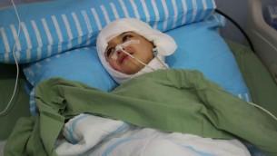 احمد دوابشة البالغ خمس سنوات يرقد في سريره في مركز شيبا الطبي في تال هاشومير  اسبوع بعد الهجوم (Eric Cortellessa/Times of Israel)