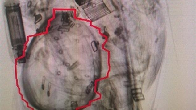 صورة الأشعة السينية  هذه تظهر قنبلة يدوية في حقيبة سيدة إسرائيلية حاولت ركوب طائرة في مطار سديه دوف، الأربعاء فبراير 24، 2016. (Israel Airports Authority)