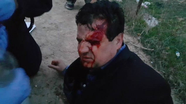 رئيس 'القائمة (العربية) المشتركة' عضو الكنيست أيمن عودة أصيب برصاص مطاطي خلال تظاهرة ضد هدم منازل في بلدة أم الحيران في النقب، 18 يناير، 2017. (Courtesy/Arab Joint List)