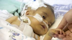 يعقوب، طفل أفغاني يبلغ من العمر سنتين، في 23 فبراير، 2017، يمسك بيد جراح القلب الإسرائيلي الذي أنقذ حياته. (Dov Lieber/Times of Israel)