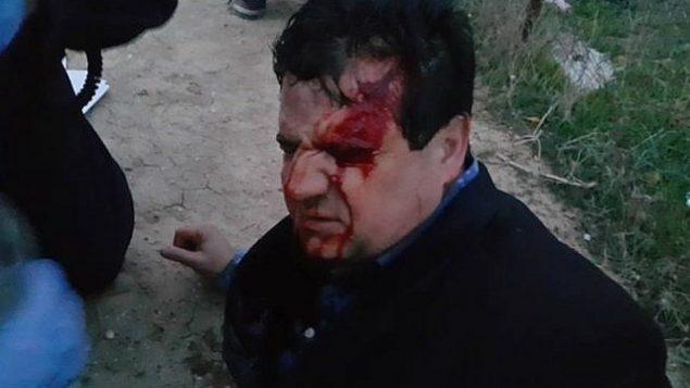 اصابة عضو الكنيست أيمن عودة قائد القائمة المشتركة بجروح أثناء احتجاج ضد هدم المنازل في بلدة أم الحيران في النقب في 18 يناير 2017. (Courtesy/Arab Joint List)