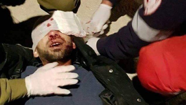 فلسطيني يتلقى العلاج من جنود اسرائيليين بعد اصابته في الرأس نتيجة رشق مستوطنين لحجارة بالقرب من مدخل نابلس في الضفة الغربية، 5 فبراير 2018 (Courtesy)