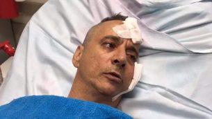يتذكر أهارون بوخاريس اللحظة التي أصيب فيها منزله في سديروت بصاروخ في 14 يوليو 2018. (Screenshot courtesy of Barzilai Hospital Spokesperson)