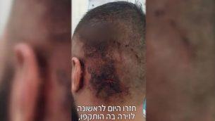 اصابات تلقاها احد ثلاثة ضحايا هجوم مفترض من قبل مجموعة يهود ضد ثلاثة رجال عرب من سكان شفاعمرو، بالقرب من شاطئ في حيفا في 23 اغسطس 2018 (Screenshot/Mako)