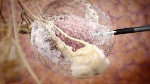 توضيح لكيفية قيام تقنية آيسكيور الطبية بتجميد الأورام باستخدام مسبار ودرجات حرارة شديدة البرودة (Courtesy)