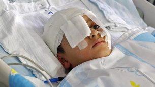 صورة تم التقاطها في 12 أغسطس، 2019 للطفل الفلسطيني عبد الرحمن شتيوي، في سرير بمستشفى 'شيبا' في رمات غان.  (JACK GUEZ / AFP)
