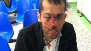 يوتام كاشبينتسكي بعد تعرضه للضرب في إعتداء ذات دوافع قومية مزعوم في بولندا، 8 سبتمبر، 2019.(Facebook)