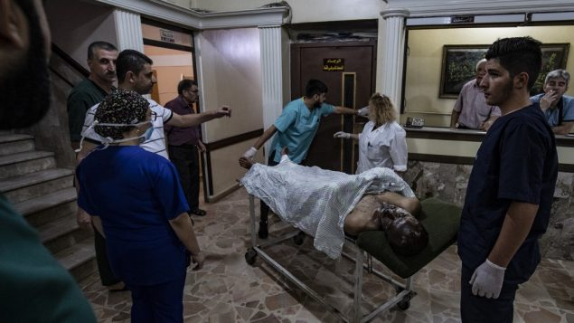 مصاب يتلقي العلاج في مستشفى في مدينة القامشلي الكردية شمال شرق سوريا، 13 أكتوبر، 2019، في أعقاب غارة جوية تركية استهدفت قافلة مركبات نقلت مدنيين وصحافيين.   (Delil SOULEIMAN / AFP)