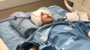 طفل (9 سنوات) أصيب في رأسه برصاصة إسفنجية خلال مداهمة للشرطة في حي العيساوية بالقدس الشرقية، في مستشفى بالقدس، 26 فبراير، 2020. (Screencapture/Channel 13)