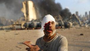 رجل مصاب يسير في موقع الانفجار الذي هز مرفأ العاصمة اللبنانية بيروت، 4 أغسطس، 2020.(AP Photo/Hussein Malla)