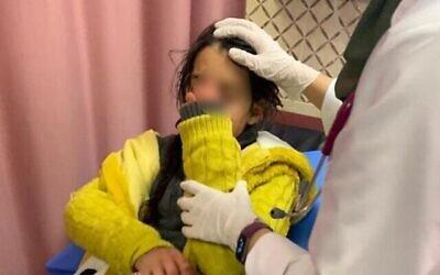 هلا مشهور القط، طفلة فلسطينية تبلغ من العمر 11 عاما،  تتعافى في المستشفى بعد تعرضها لهجوم رشق بالحجارة نفذه مستوطنون متطرفون. (Madama Resident/ Yesh Din)