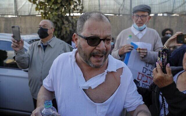 عضو الكنيست عوفر كاسيف، وهو عضو يهودي في القائمة المشتركة ذات الغالبية العربية، بعد تعرضه للضرب والاحتجاز من قبل الشرطة الإسرائيلية خلال مظاهرة في حي الشيخ جراح في القدس، 9 أبريل 2021 (AHMAD GHARABLI / AFP)