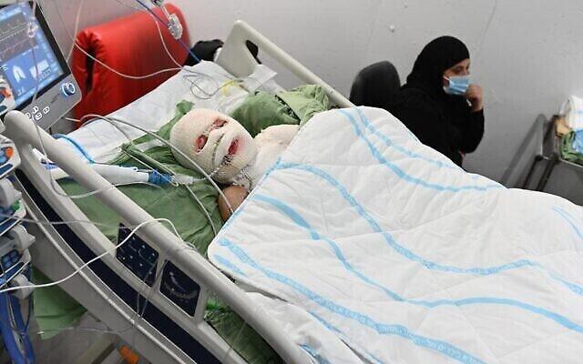 محمد (12 عاما)، الذي أصيب بإلقاء قنبلة حارقة يوم الجمعة على منزله في يافا ، الصورة وهو في سريره في مركز شيبا الطبي. (courtesy of Sheba Medical Center)