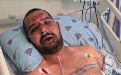 سعيد موسى، مواطن عربي إسرائيلي تعرض لاعتداء من قبل حشد من اليهود الإسرائيليين، في مركز إيخيلوف الطبي، 14 مايو، 2021.  (video screenshot)