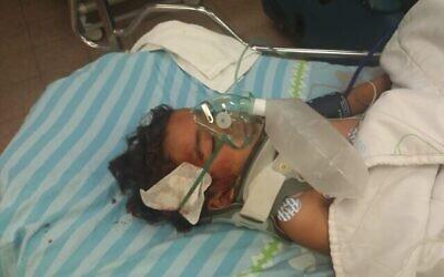 محمد بكر حسين، 3 أعوام، أصيب بحجارة ألقاها مستوطنون إسرائيليون في منطقة جبال جنوب الخليل، 28 سبتمبر، 2021. (Courtesy)