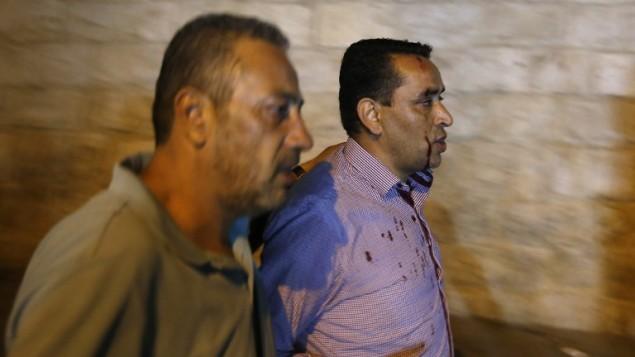 رجل فلسطيني أصيب خلال مواجهات مع الشرطة الإسرائيلية يسير بالفرب من باب الأسباط في البلدة القديمة في مدينة القدس، 18 يوليو، 2017. (AFP/AHMAD GHARABLI)