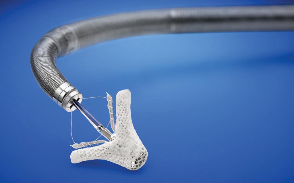 A MitraClip like this one attached to a surgical catheter is inserted into the heart to improve valve functioning.