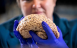 COVID-19, even if it is slight, may cause brain disease, according to some researchers.