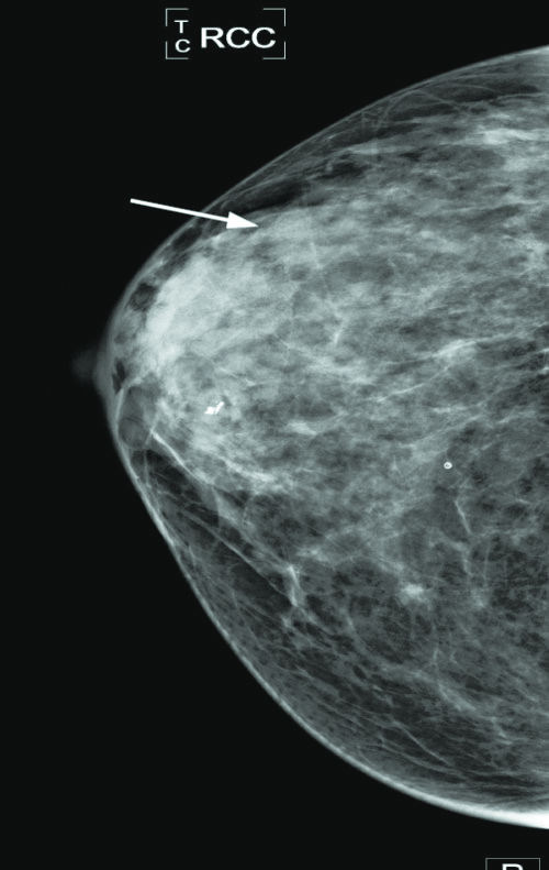 Breast Cancer Basics First In A Series Do I Really Need That