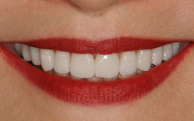 Courtesy of Goldstein Garber & Salama //  After photos of a patient treated for teeth-grinding issues.
