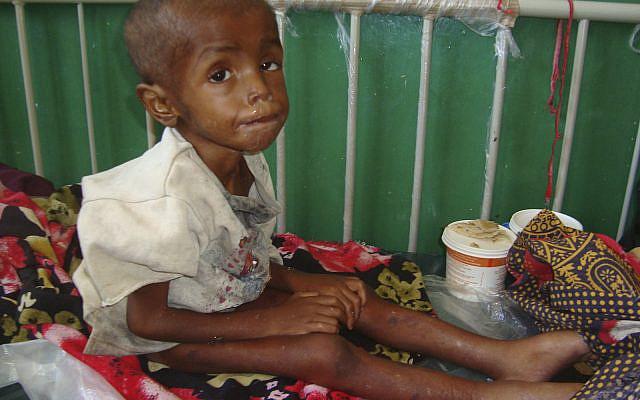 Abdirisak Mohamed, 4, from southern Somalia, suffering malnourishment, at Banadir hospital, Mogadishu Somalia, July, 31, 2011. (AP Photo/Farah Abdi Warsameh)