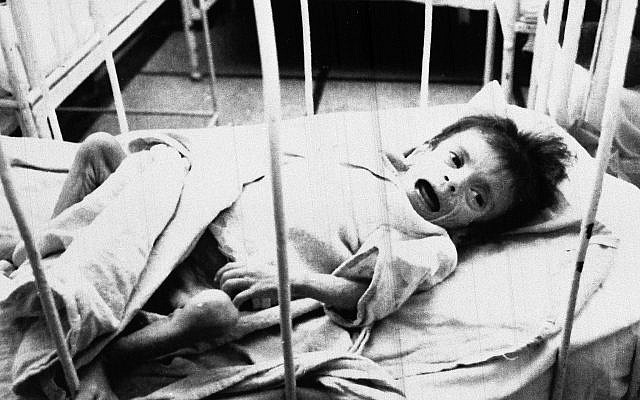 An orphaned child lies in a cot on the AIDS ward at Victor Babes Hospital in Bucharest, Romania, Feb. 7, 1990. (AP Photo/Peter Dejong)