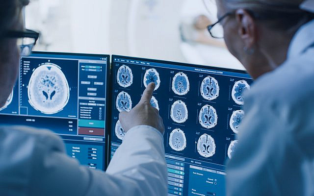 Illustrative. Brain scans. (iStock)