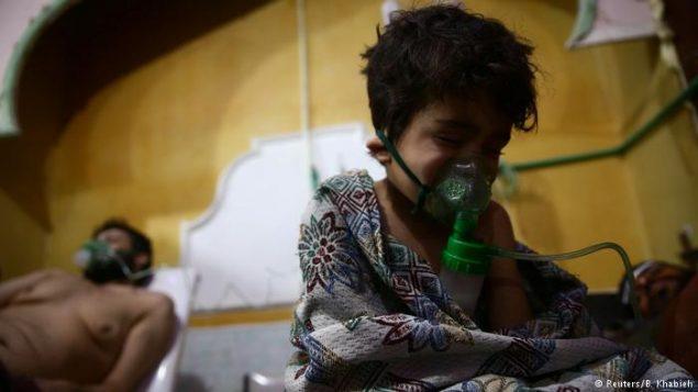 کودک سوری مجروح از حملات شیمیایی
