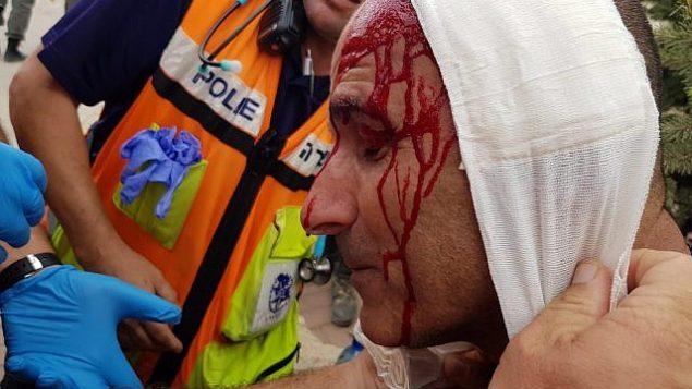 ۱: یک افسر پلیس که در روند تخلیه شهرک خارج از محدودهی نتیو هآووت، مورد حملهی شهرکنشینان قرار گرفت، از سوی تیم درمانی مورد مداوا است، ۱۲ ژوئن ۲۰۱۸. (Israel Police)