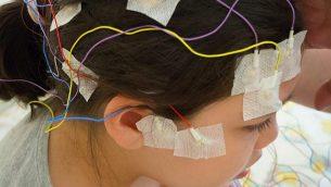 تصویر: تزئینی – دختری که الکترورادهای ای ای جی به سرش وصل شده است.  (Luaeva, Getty Images)