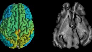 تصویر: اسکن ام.آر.آی استاندارد مغز یک خوک، راست، و اسکن ام.آر.آی به شیوه تازه که تغییرات مولکولی در بخشهای گوناگون مغز را نشان میدهد. (Shir Filo/Hebrew University)