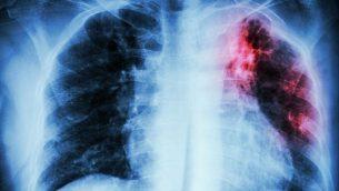 تصویر تزئینی از سینهٔ بیماری مبتلا به سل ریوی. (stockdevil; iStock by Getty Images)
