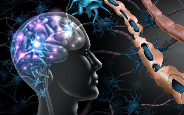 تصویر تزئینی از تأثیر اسکلروز چندگانه بر مغز. در چپ، مغزی با نواحی سفید تخریب ام.اس. را نشان می دهد. در سمت راست، بالا، از نزدیک میلین منظم، و زیر، میلین آسیب دیده. (wildpixel via iStock by Getty Images)