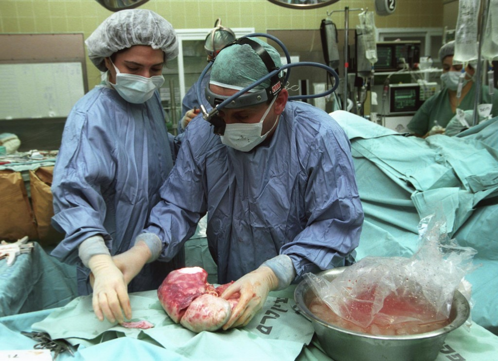 Illustrative photo of doctors performing a liver transplant (photo credit: Flash90)