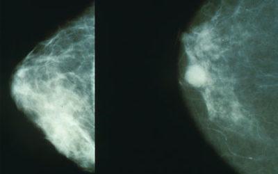 Mammographie normale (à gauche) ou présentant un cancer du sein (à droite). (Crédit : domaine public/NIH/WikiCommons)