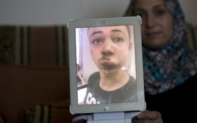 La mère de Tariq Abou Khdeir (le cousin de l'adolescent tué) montre une image de son fils qui aurait été battu par la police israélienne à Jérusalem-Est le 5 juillet 2014 (Crédit photo: Ahmad Gharabli / AFP)