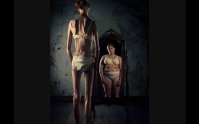 Illustration d'une femme anorexique devant le miroir (Crédit : capture d'écran YouTube)
