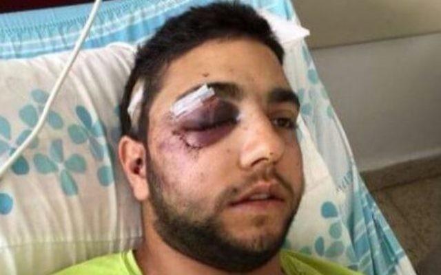 Le soldat de Tsahal druze Razzi Houseysa de Daliyat al-Carmel agressé vendredi 6 février 2015, apparemment après avoir été entendu parler l'arabe dans une boîte de nuit dans le nord d'Israël. (Crédit : Autorisation)