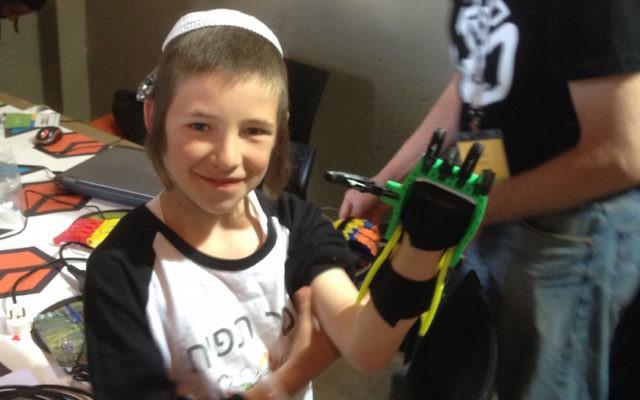 """Un jeune participant au TOM montre sa """"main rapace"""" (Crédit : Autorisation)"""