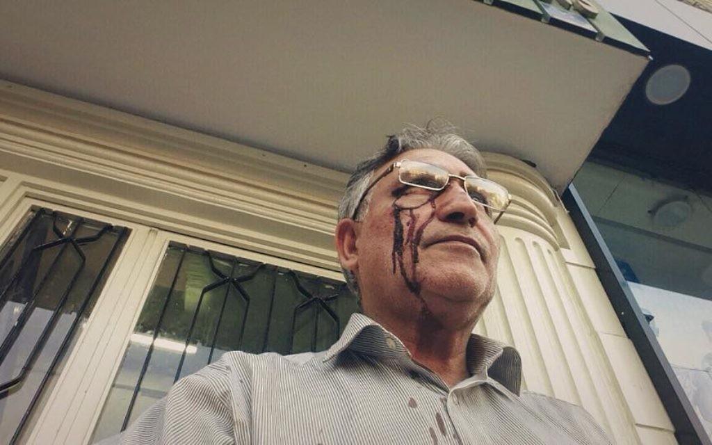 Mohammad Nourizad, le visage ensanglanté, après avoir protesté devant le domicile du guide suprême de l'Iran, Ali Khameni, le 14 octobre 2014.  (Crédit : Autorisation Abazar Noorizad)