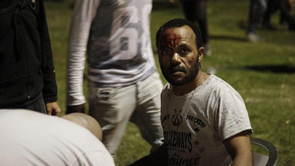 Un Israélien d'origine éthiopienne reçoit des soins après avoir été blessé lors d'une manifestation anti-brutalité de la police sur la Place Rabin de Tel-Aviv, le dimanche 3 mai 2015 (Crédit photo: Juda Ari Gross / Times of Israël)