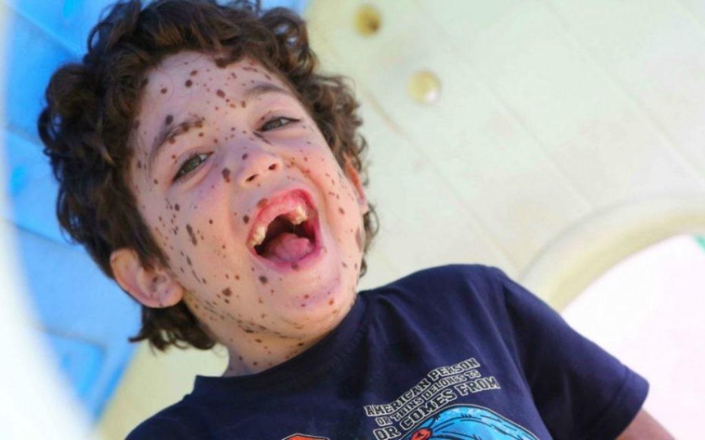 Erez est âgé de 6 ans et a une maladie rare de la peau (Crédit : Rick Guidotti)