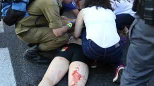 Une femme blessée après l'agression au couteau à la marche de la gay pride à Jérusalem le 30 juillet 2015 (Photo: Eric Cortellessa / Times of Israel)
