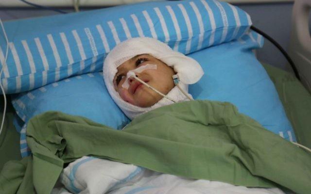Ahmed Dawabsha, cinq ans, au centre médical Chaim Sheba à Tel Hashomer (Crédit : Eric Cortellessa / Times of Israël)