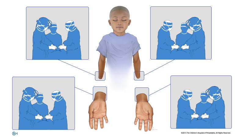 Une illustration des quatre équipes qui ont opéré simultanément sur Zion Harvey au cours de sa greffe de la main bilatérale en juillet 2015 au Centre hospitalier pour enfants de Philadelphie. (Crédit : Hôpital pour enfants de Philadelphie)