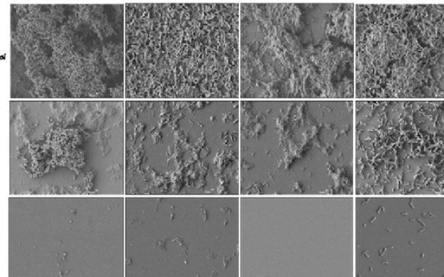 Les surfaces contrôles, non traitées, montre une colonisation bactérienne dense (en haut), alors que le revêtement FMC-Cu empêche la formation de biofilm, en bas. (Crédit : autorisation)